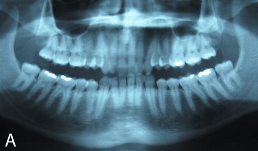 Aparelho Herbst X osteotomia sagital mandibular bilateral no tratamento do Padrão II, Classe II, divisão 1 em adultos – relato de casos
