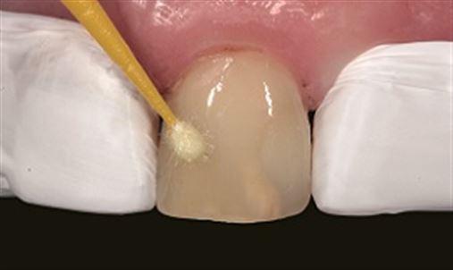 Facetas diretas – uma alternativa para dentes escurecidos