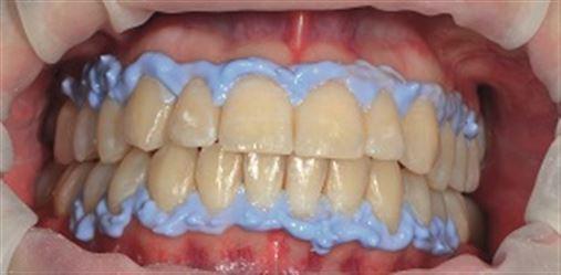 Clareamento dental: possibilidades e técnicas
