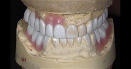 Coluna do Aloísio: Sequência clínica em reabilitação oral