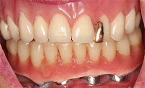 Cinco anos de reabilitação total de mandíbula atrófica com implantes curtos em carga imediata – relato de caso