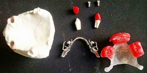 Reabilitação bucal com próteses conjugadas – relato de caso