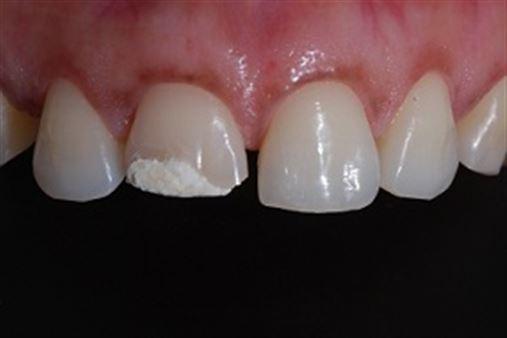Colagem de fragmento dental, tratamento conservador – relato de caso