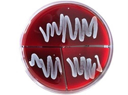 Na antissepsia peri-bucal pré-operatória de exodontias deve-se utilizar clorexidina ou PVP-I?
