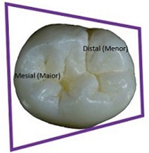 Coluna Rizzi: Entendendo a anatomia do primeiro molar inferior