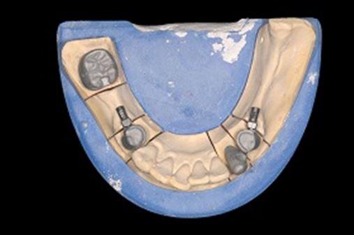 Reabilitação oral com uso de prótese parcial removível com encaixe de precisão em paciente que fez uso de bisfosfonatos – relato de caso