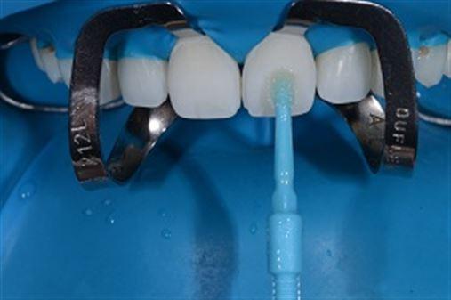 Laminados cerâmicos associados à cirurgia plástica periodontal – a arte de transformar sorrisos