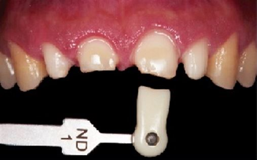 Tratamento estético de dentes severamente desgastados: revisitando a técnica de Dahl – parte I
