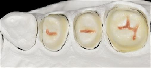 Técnica de estratificação em cera para confecção de enceramento de diagnóstico na prótese odontológica