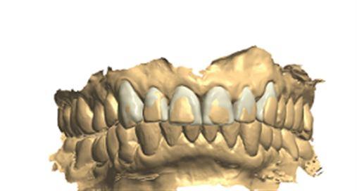 Fluxo de trabalho digital para a reabilitação estética dos dentes anteriores
