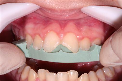 A importância das restaurações diretas em dentes fraturados na recuperação da autoestima de um paciente juvenil