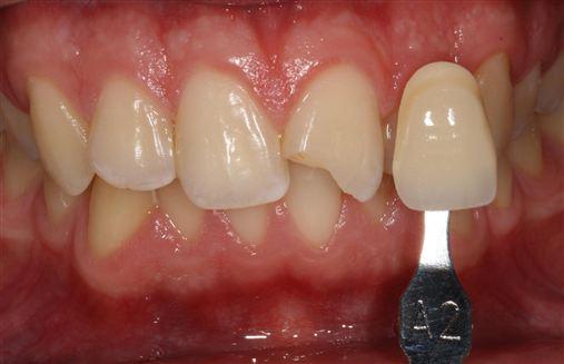 Estratificação natural com resinas compostas em dente anterior fraturado