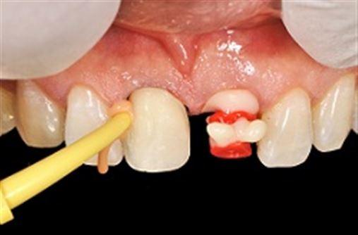 Aspectos relevantes em implantes imediatos pós-exodonticos em área estética