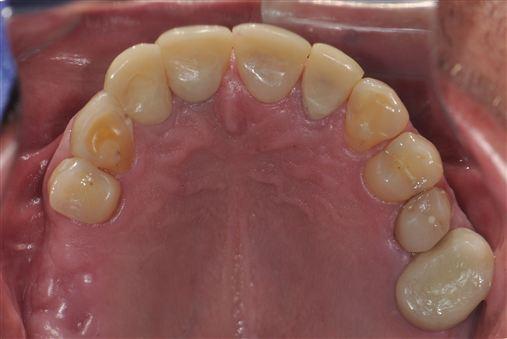 Enxerto alógeno: alternativa para cirurgias de levantamento de seio maxilar
