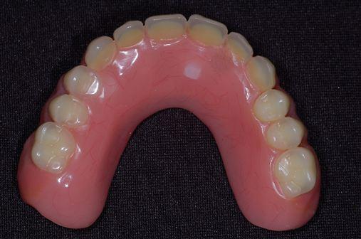Os benefícios da overdenture maxilar sobre implantes sem cobertura palatina – relato de caso