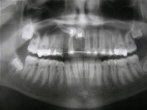 Manejo dos cistos dentígeros associados a dentes viáveis – relato de casos