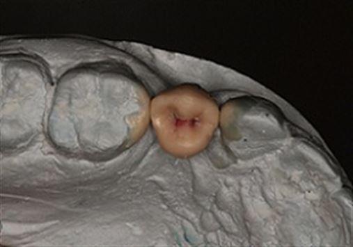 Uso de guias no planejamento de próteses sobre implantes