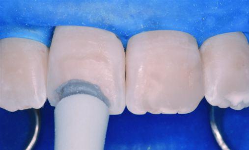 Soluções estéticas para alterações intrínsecas do esmalte dentário