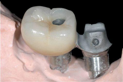 Alternativa protética para correção da angulação com componentes não indexados sobre implantes Cone Morse indexados: sistema tubo parafuso sobre minipilar