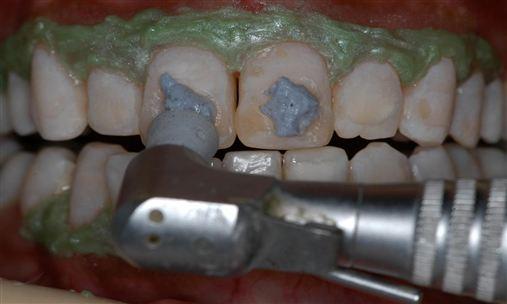 Associação de técnicas conservadoras para otimizar a estética do sorriso: clareamento dental e microabrasão do esmalte