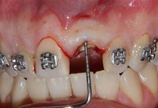 Interrelação entre ortodontia, periodontia e prótese na reabilitação de dente com violação das distâncias biológicas