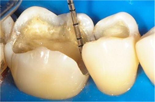 Versatilidade da resina composta para restaurações em dentes posteriores: técnica direta e indireta