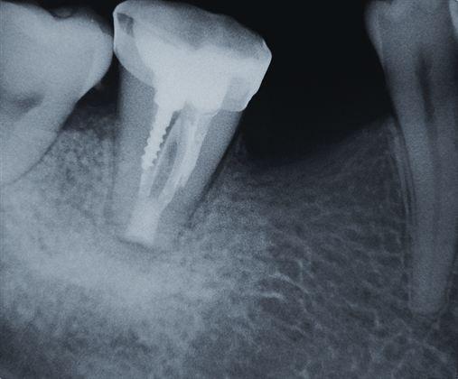 Reimplante intencional visando a remoção de instrumento endodôntico fraturado – relato de caso
