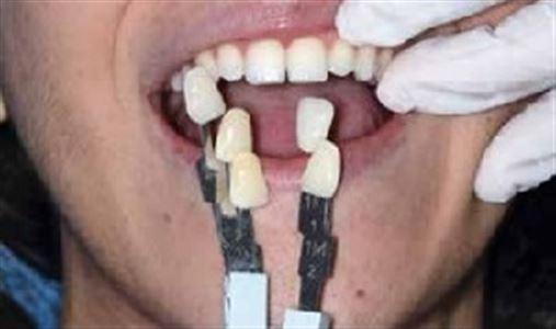 Comparação entre métodos visuais, scanner intraoral e do easyshade para seleção de cor de dentes naturais
