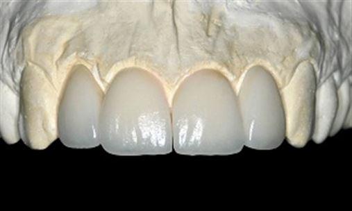 Reabilitação estética do sorriso com restaurações em cerâmica pura – relato de caso