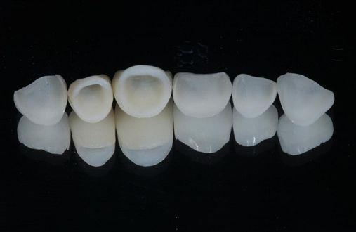 Restaurações Cerâmicas em dentes anteriores.