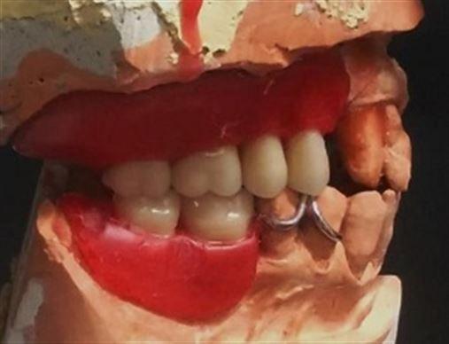 Prótese total imediata em paciente com periodontite crônica associada ao tabagismo – relato de caso