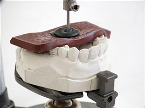 Técnica simplificada de fabricação de registro de inserção em prótese parcial removível