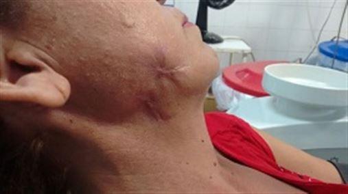 Fasceíte necrotizante cérvico-facial provocada por infecção odontogênica
