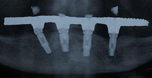 Relação entre extensão do cantilever e complicações biológicas em implantes distais de próteses totais fixas