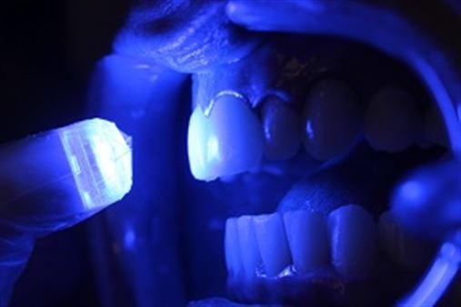 Odontologia estética adesiva – a reconstrução do sorriso com laminados cerâmicos