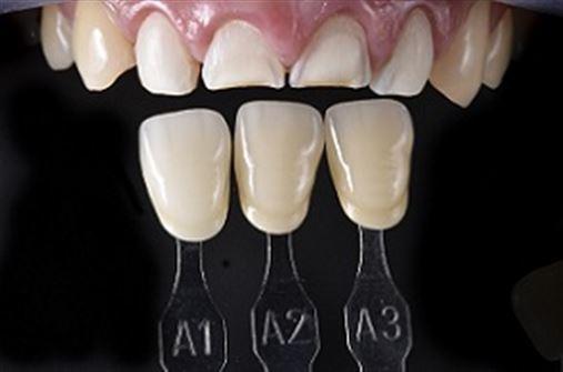 Odontologia CAD/CAM – entendendo o virtual