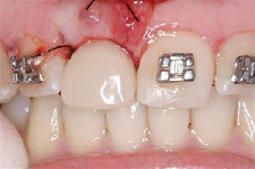 Instalação e provisionalização imediata de implantes após exodontia em dentes com reabsorção externa