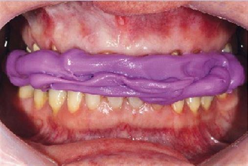 Reabilitação estética do sorriso por meio do sistema cerâmico dissilicato de lítio – relato de caso