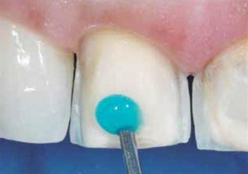 Facetas em dentes escurecidos – uma abordagem alternativa para a estratificação da região incisal