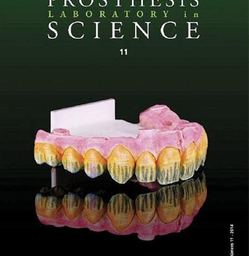 Influência do selamento de superfície na rugosidade e microdureza de compósitos dentais antes e após o clareamento dental
