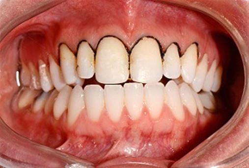 Reconstrução do sorriso: uma abordagem conservadora através de laminados cerâmicos – relato de caso