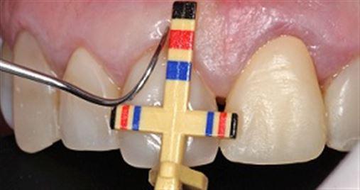 Harmonização estética de dentes anteriores utilizando cirurgia periodontal com auxílio do proporcionador dental de Chu – relato de caso