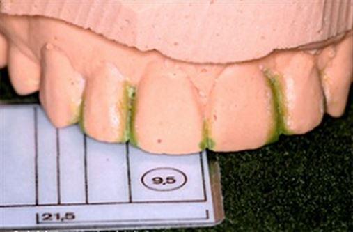 Estudo das proporções dentárias utilizando os métodos de Bolton e Levin