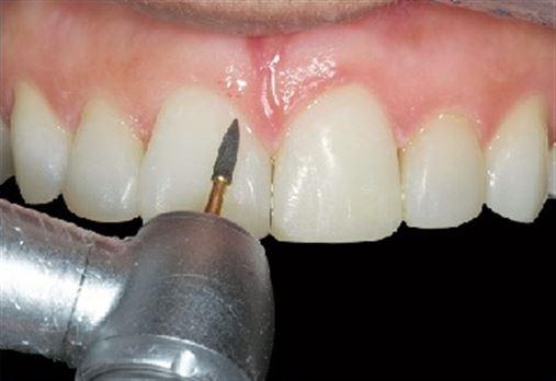 Reabilitação estética de diastema múltiplo anterior com resina composta – controle clínico de sete meses