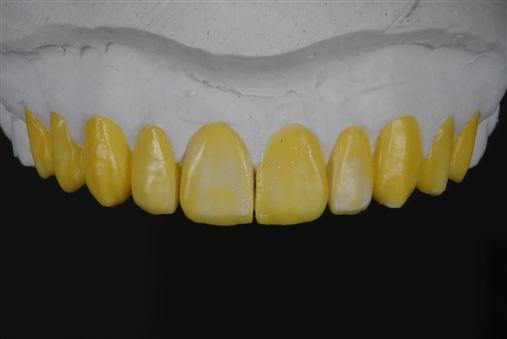 Laminados cerâmicos – Parte I: planejamento, cirurgia periodontal, preparações dentais e provisórios