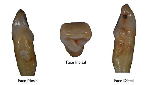 Morfologia do lateral superior: conhecimento de suas faces