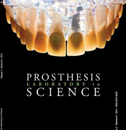 Avaliação por meio de questionário do processo de confecção das próteses dentárias sobre implantes. Parte II: aspectos laboratoriais