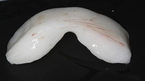 Planejamento multidisciplinar e associação de técnicas para correção de exposição gengival excessiva em caso de reabilitação bucal