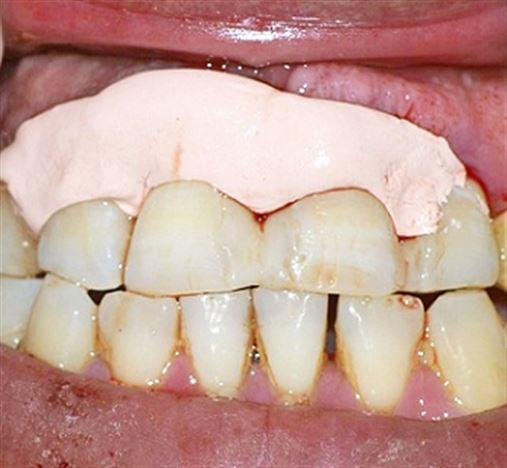 Uso de contenção com fibra de vidro imersa em resina composta para contenção periodontal – relato de caso