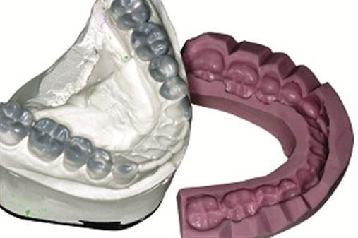 Coluna Rizzi: Reabilitação das erosões dentais através do enceramento diagnóstico